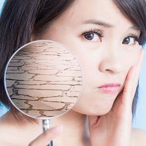 Menopause, Dry Skin